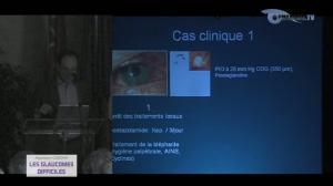 Les Glaucomes difficiles - Cas Clinique